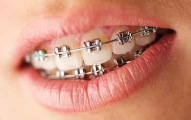 Zahnspange mit 21